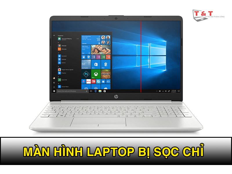 man-hinh-laptop-bi-soc